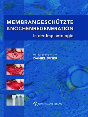 Membrangeschützte Knochenregeneration in der Implantologie