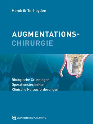 Augmentationschirurgie
