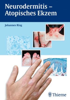 Neurodermitis - atopisches Ekzem